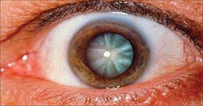 Catarata en paciente de oftalmología en Aguascalientes