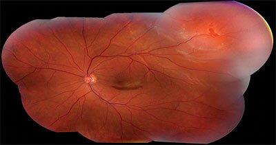 Desprendimiento de retina en pacientes de oftalmología