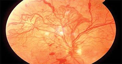retinopatía diabética en ojos de paciente en aguascalientes