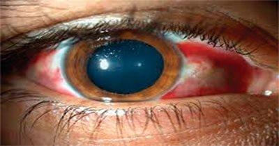 Oftalmólogo Dra Tania Adabache Guel - Trauma ocular