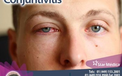 ¿Qué es la conjuntivitis?