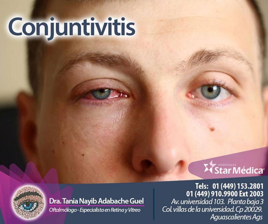 Conjuntivitis en joven
