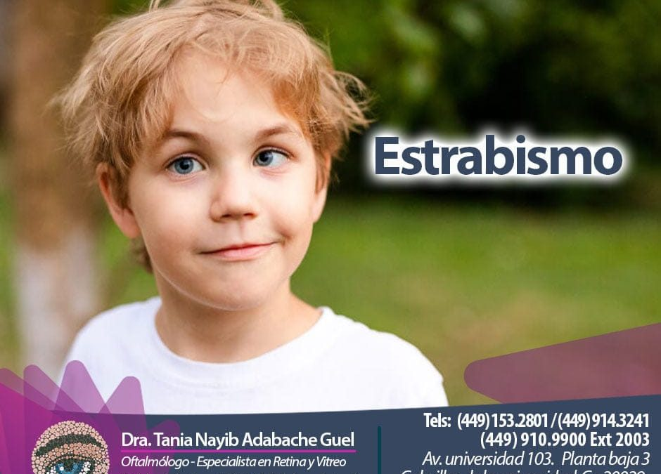 Estrabismo en niños