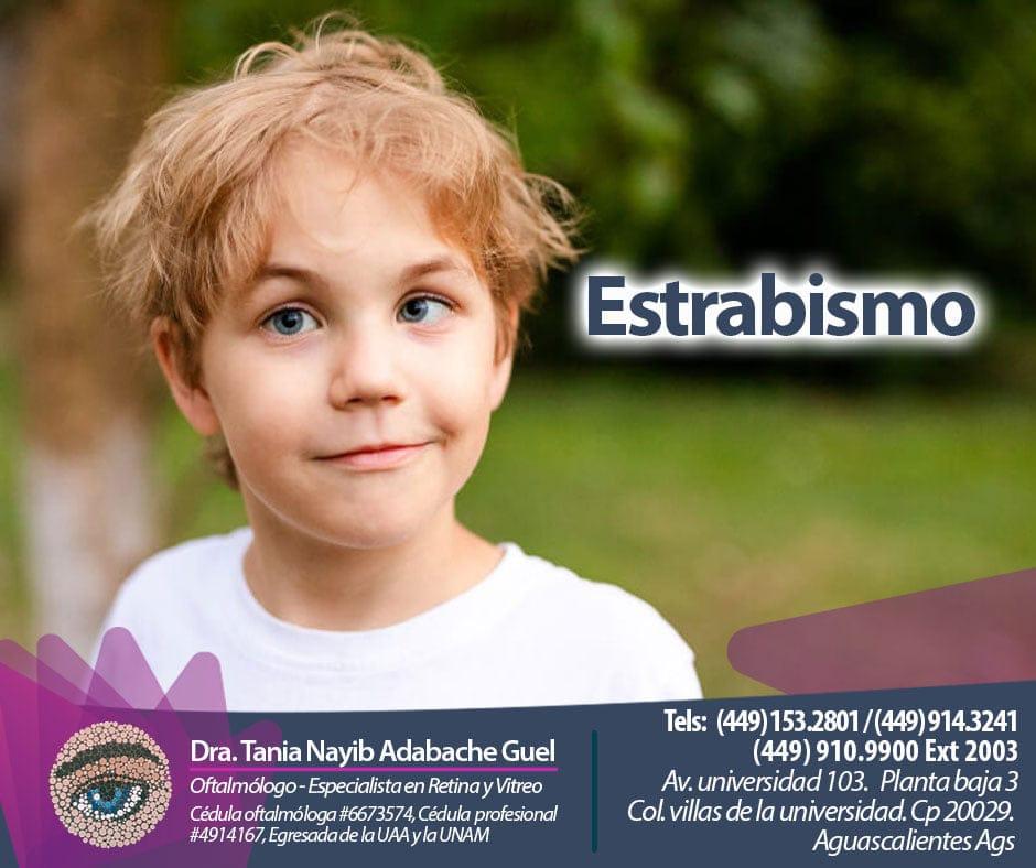El estrabismo en niños