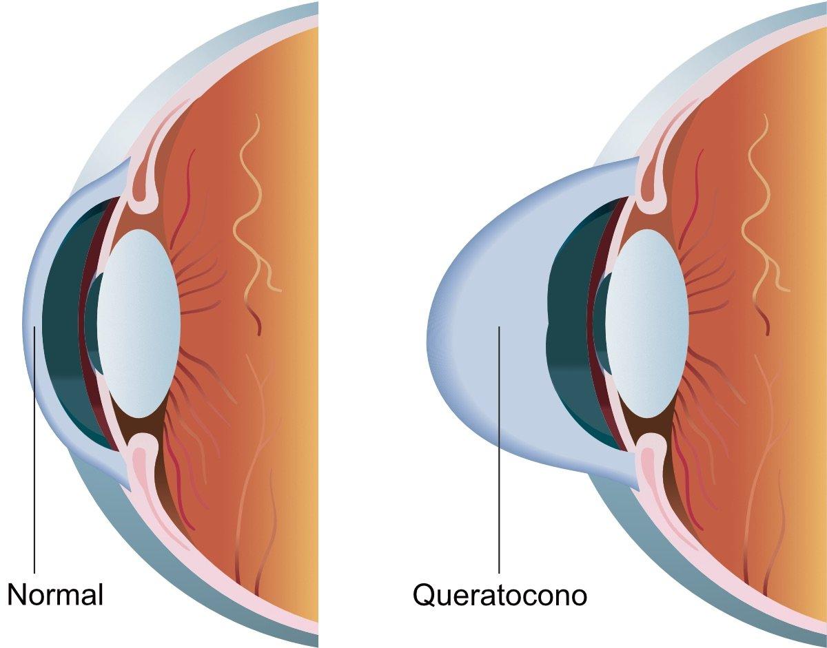 Queratocono en ojos de paciente en Aguascalientes