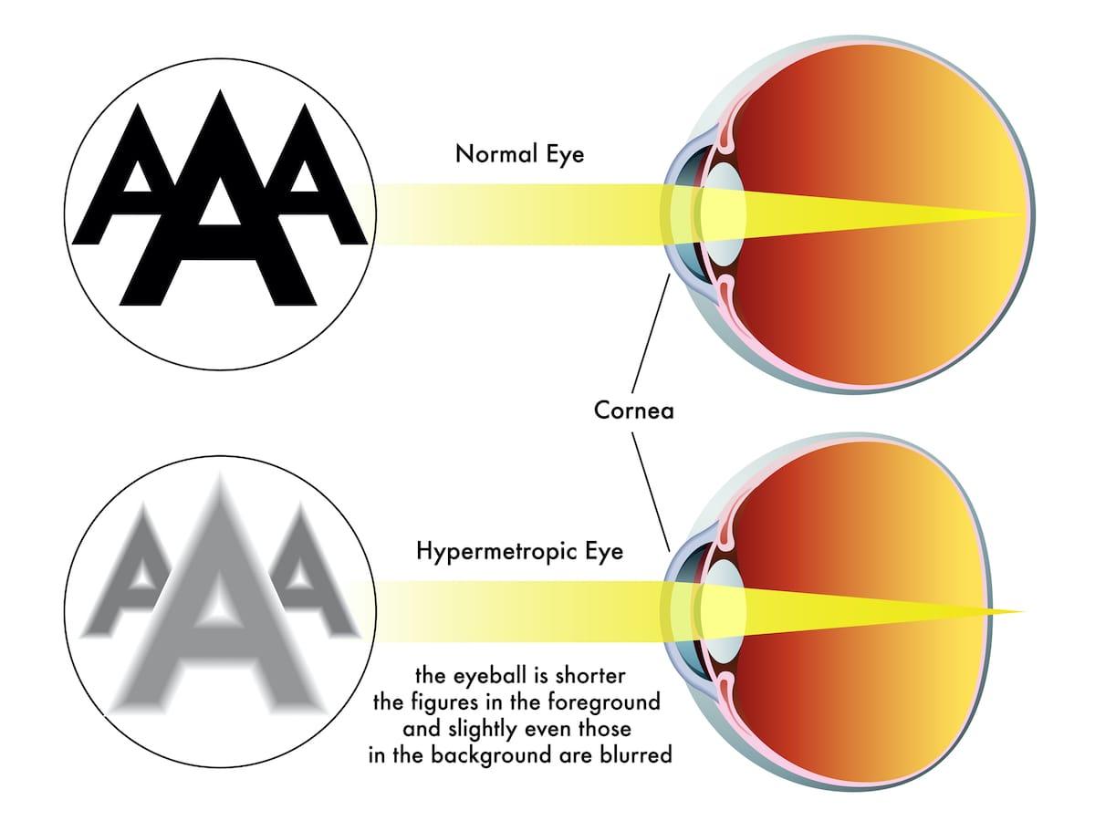 Comparación de ojo con hipermetropía y ojo normal