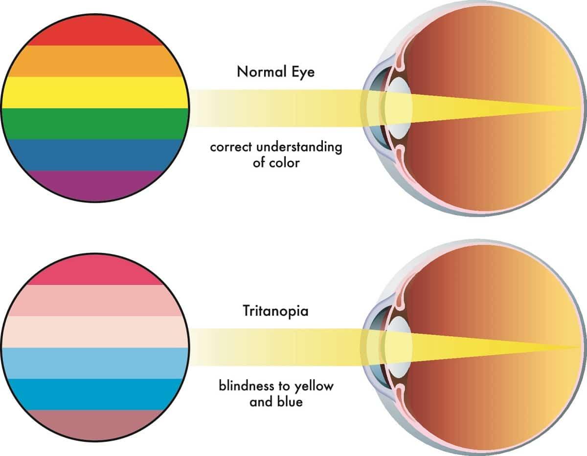 Qué es el daltonismo